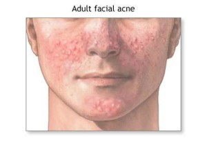 causes-for-adult-acne