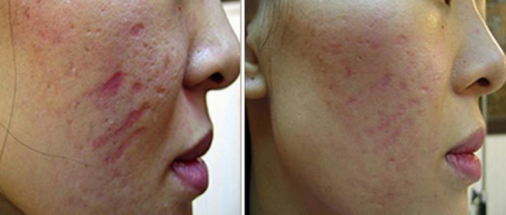 Revitol Scar Cream Review Of This Popular Acne Treatment