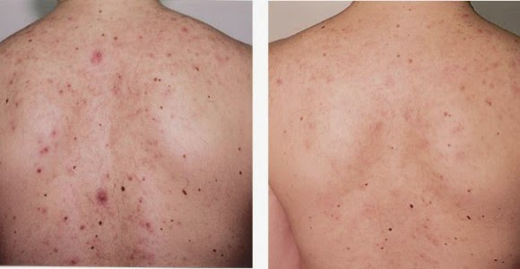 How to get rid of acne on back and shoulders day